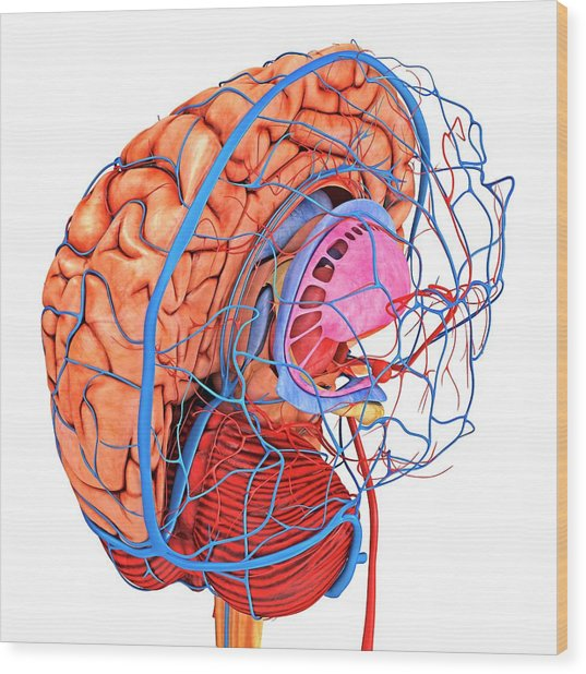 Brain's Blood Supply Wood Print by Alfred Pasieka/science Photo Library