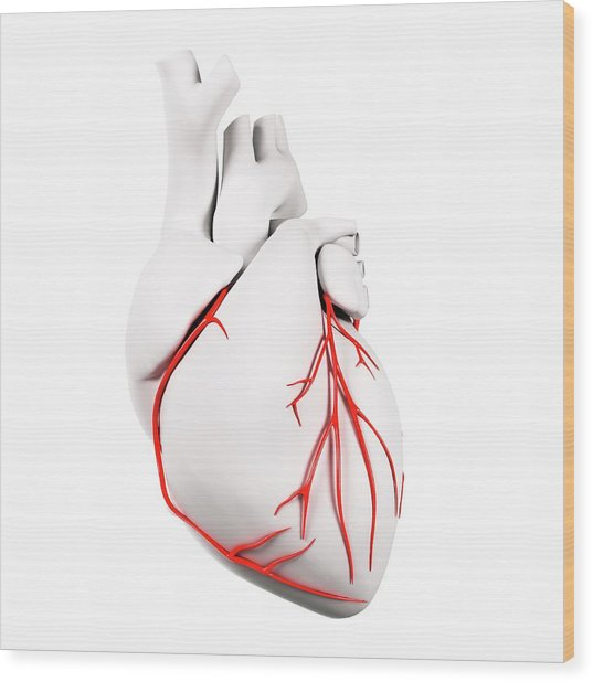 Coronary Arteries Wood Print by Sciepro/science Photo Library