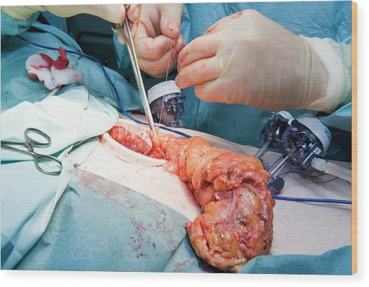 Laparoscopic Colon Cancer Surgery Wood Print by Dr P. Marazzi/science Photo Library
