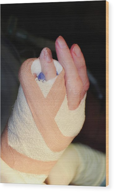 Dupuytren's Contracture Surgery Wood Print by Dr P. Marazzi/science Photo Library