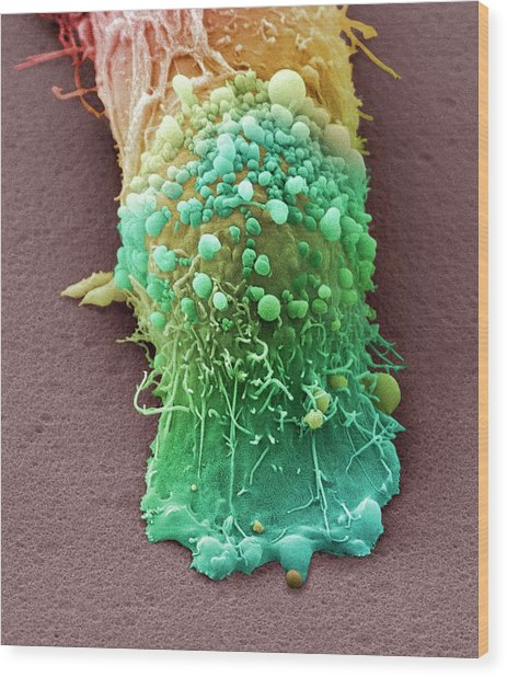 Skin Cancer Cell Wood Print by Steve Gschmeissner