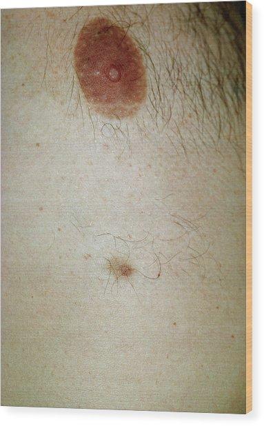 Accessory Nipple On A Man's Breast Wood Print