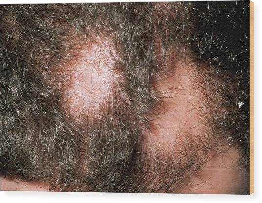 Alopecia Areata Wood Print by Dr P. Marazzi/science Photo Library