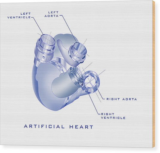 Artificial Heart Wood Print