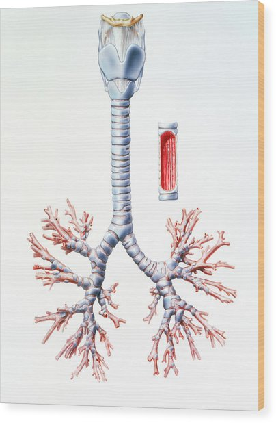 Artwork Of Trachea And Bronchi Of The Human Lungs Wood Print by Bo Veisland, Mi&i/science Photo Library