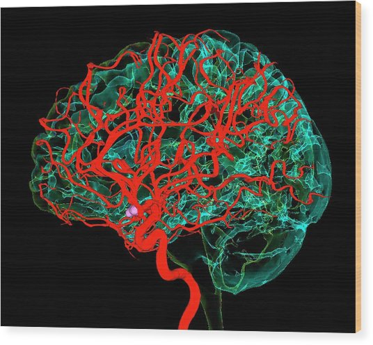 Blood Vessels Supplying The Brain Wood Print by K H Fung/science Photo Library