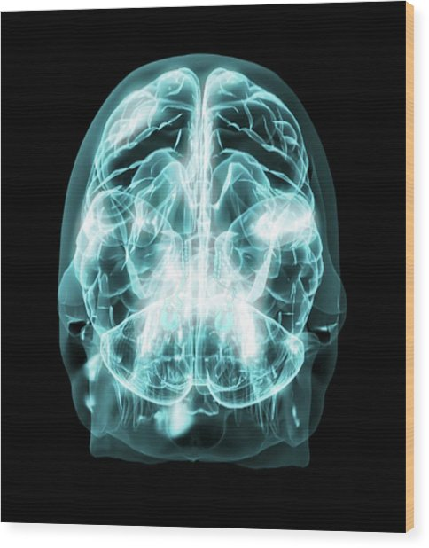 Brain Anatomy Wood Print by Thierry Berrod, Mona Lisa Production/ Science Photo Library