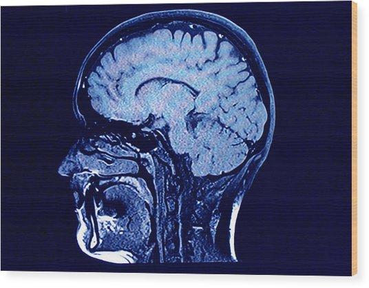 Brain Head Scan Wood Print by Roxana Wegner