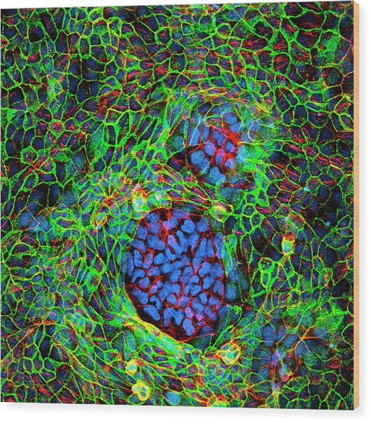 Cancer Cells Wood Print by