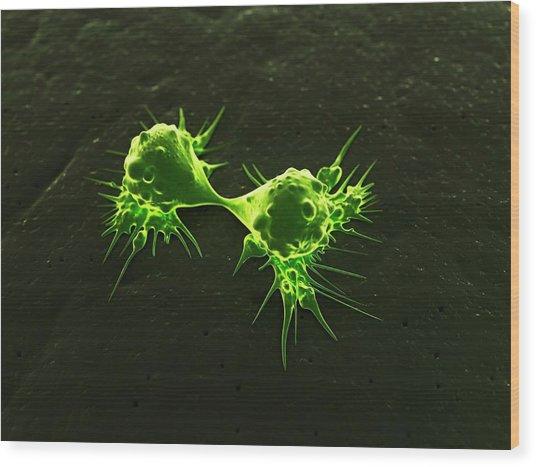 Cancer Cells Dividing, Artwork Wood Print by Sciepro