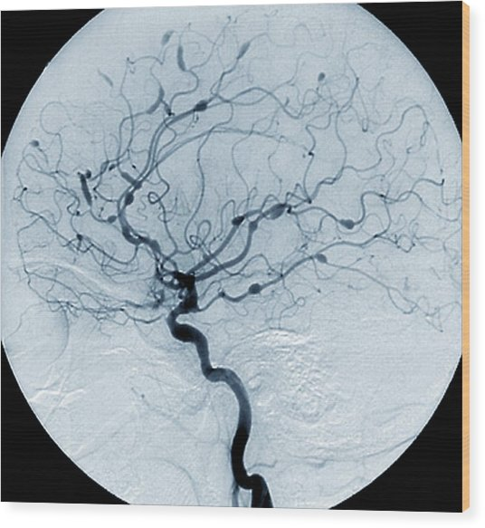 Cerebral Aneurysms In Lupus Wood Print by Zephyr/science Photo Library