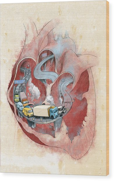 Clogged Heart Wood Print by Fanatic Studio / Science Photo Library