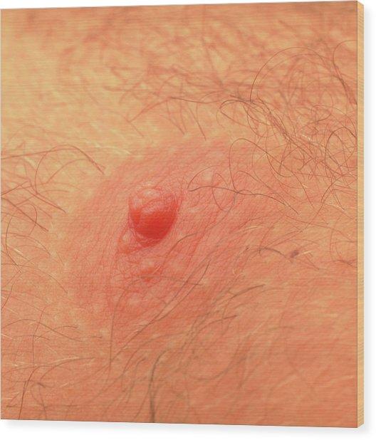Close-up Of A Man's Nipple Wood Print