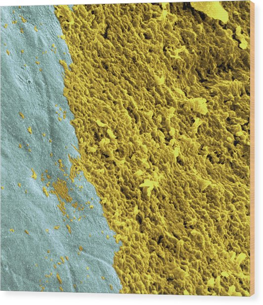 Coloured Sem Of A Dental Plaque Seen On A Tooth Wood Print by Dr Tony Brain/science Photo Library