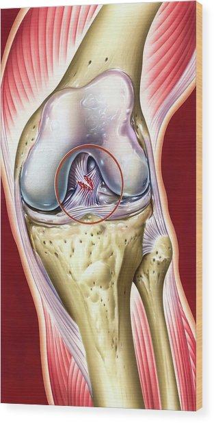 Cruciate Ligament Knee Injury Wood Print by John Bavosi