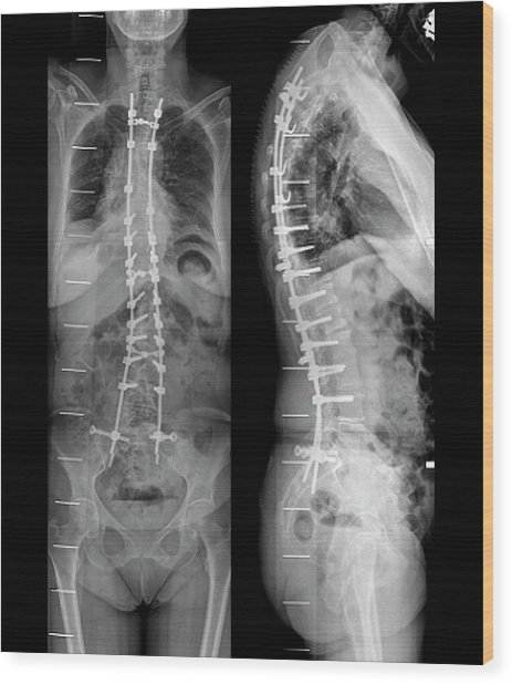 Curvature Of The Spine After Surgery Wood Print by Zephyr