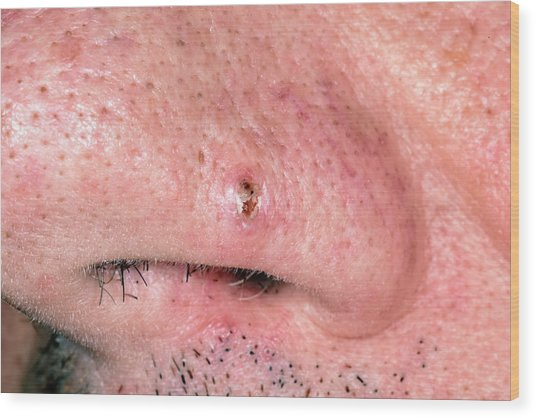 Dilated Pore by Dr P  Marazzi/science Photo Library