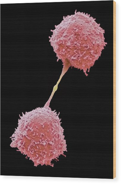 Dividing Lymphocytes Wood Print