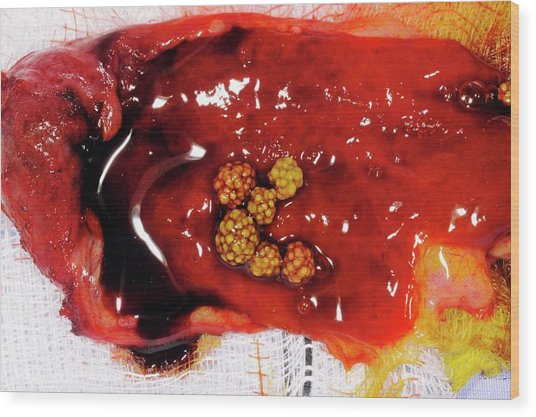Excised Gallbladder And Gallstones Wood Print by Dr P. Marazzi/science Photo Library