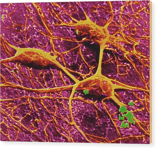 False-col Sem Of 3 Neurones Of Cerebral Cortex Wood Print