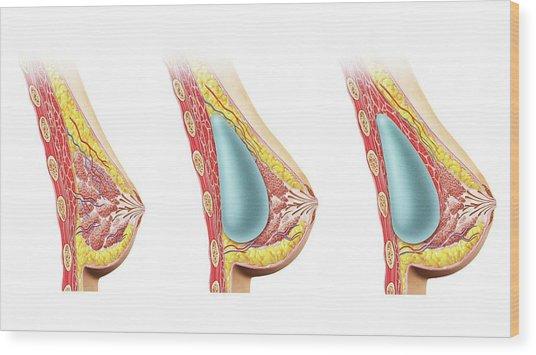 Female Breast Implant Wood Print by Leonello Calvetti