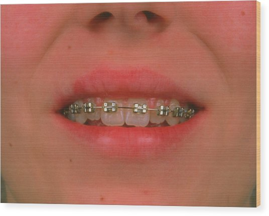 Fixed Braces On The Teeth Of A 13-year-old Girl. Wood Print