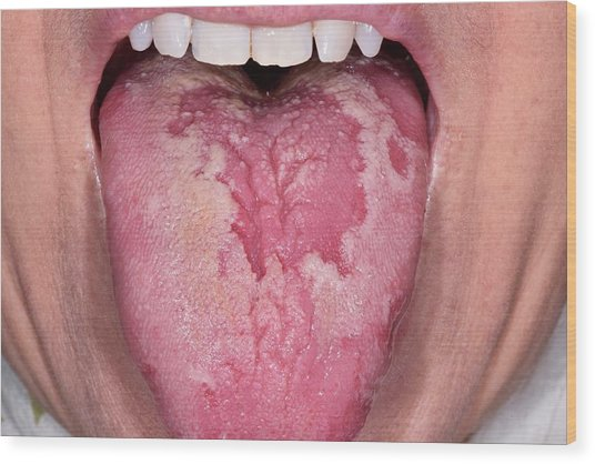 Geographic Tongue Wood Print by Dr P. Marazzi/science Photo Library