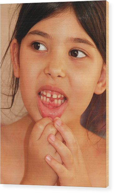 Girl With Missing Tooth Wood Print by Photostock-israel