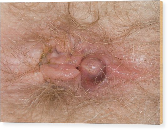 Haemorrhoids With A New Pile Wood Print by Dr P. Marazzi/science Photo Library