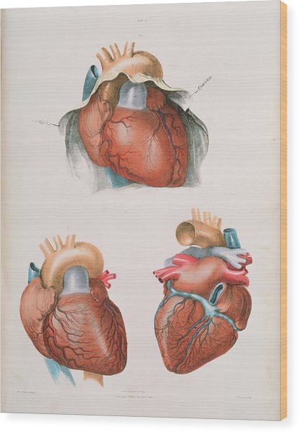 Heart Wood Print by Sheila Terry/science Photo Library