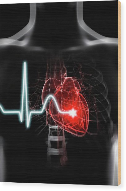 Heartbeat Wood Print by Sciepro/science Photo Library
