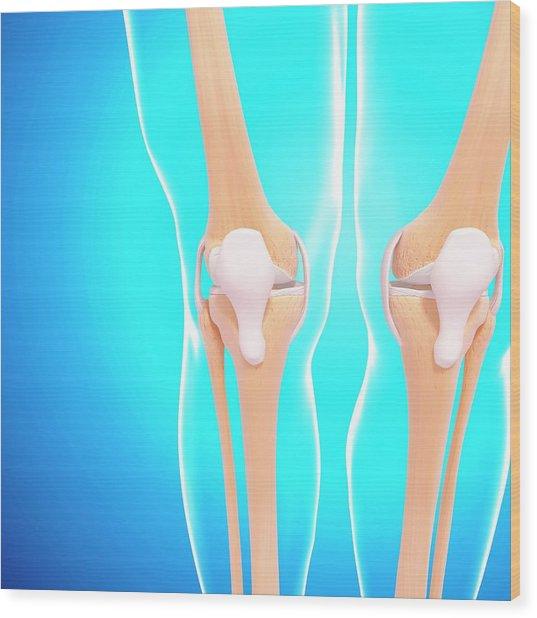 Human Knee Joints Wood Print by Pixologicstudio