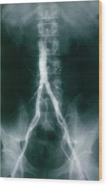 Iliac Arteries Wood Print by Cnri/science Photo Library