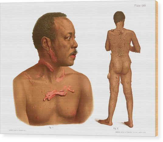 Keloids And Fibromas Wood Print by Us National Library Of Medicine/science Photo Library
