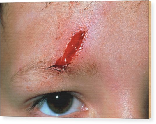Laceration Above The Eye Of A 5 Year Old Boy Wood Print by Dr P. Marazzi/science Photo Library