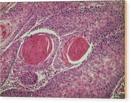 Light Micrograph Of Squamous Cell Carcinoma Wood Print by Science Photo Library.