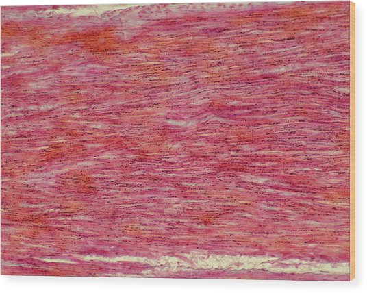 Lm Of Section Through Normal Human Sinew (tendon) Wood Print by Astrid & Hanns-frieder Michler/science Photo Library