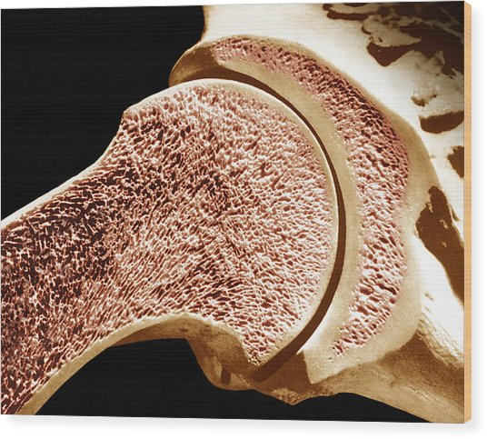 Longitudinal Section Of The Humerus. The Outer Portion Is Compact Bone And The Inner Portion Is Spongy Or Cancellous Bone. Wood Print by Dr. Don Fawcett