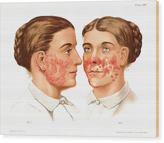 Lupus Erythematosus And Vulgaris Wood Print by Us National Library Of Medicine/science Photo Library
