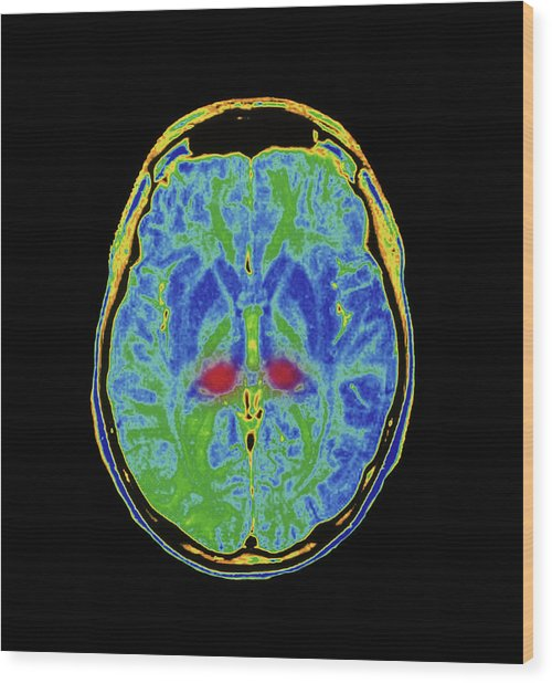 Mri Scan Of Human Brain Diseased With Cjd Wood Print by Simon Fraser/royal Victoria Infirmary, Newcastle Upon Tyne/science Photo Library
