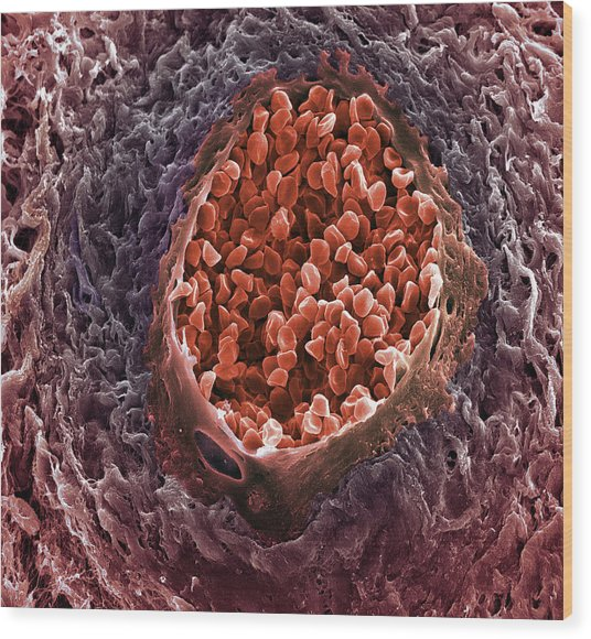 Ovarian Cancer Blood Vessel Wood Print by Steve Gschmeissner