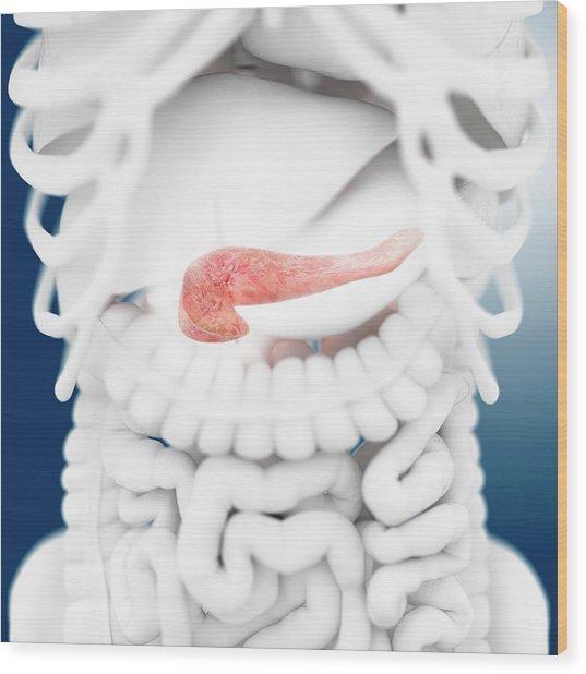Pancreas Wood Print by Springer Medizin
