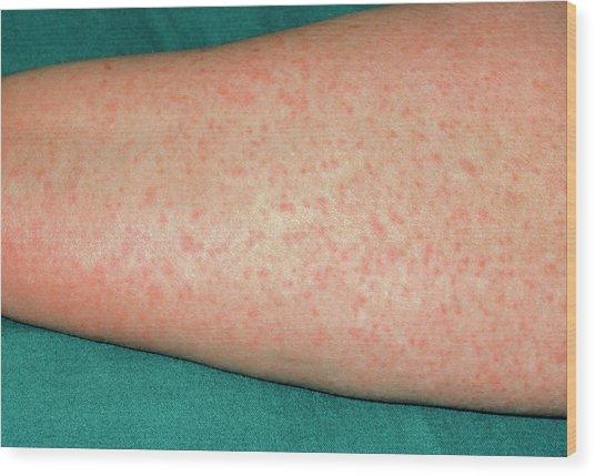 Penisiliini Allergia