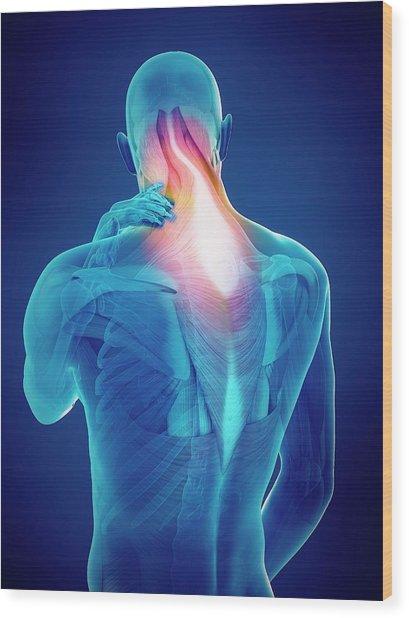 Person With Neck Pain Wood Print by Sebastian Kaulitzki/science Photo Library