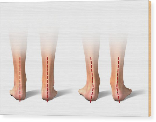 Pronation Of The Feet. Artwork Wood Print by Science Photo Library