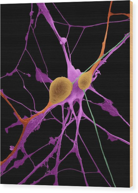 Pyramidal Neurons From Cns Wood Print
