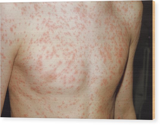 Rubella Rash Wood Print by Pr. Ph. Franceschini/cnri/science Photo Library