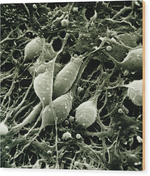 Sem Of Neurones From The Human Cerebral Cortex Wood Print