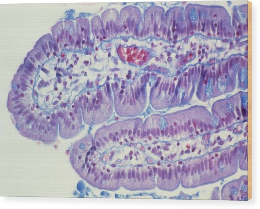 Small Intestine Lining Wood Print