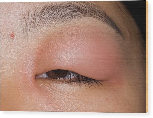 Swollen Eyelid After Insect Bite Wood Print by Dr P. Marazzi/science Photo Library